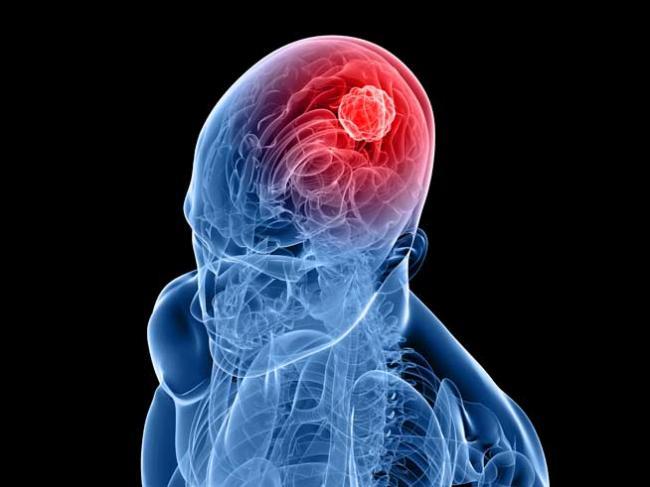 tumoare creier